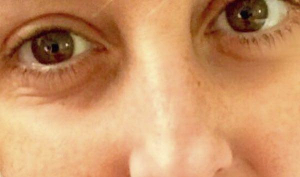 Nadia Toffa e la foto che ci fa preoccupare per la sua salute