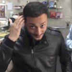 Trapianto di capelli e di barba in Turchia quanto costa? Ecco tutto quello che c'è da sapere
